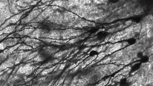 dentate gyrus neurons